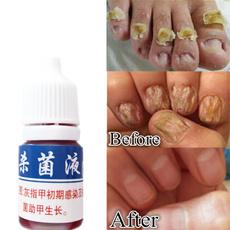 Beauty, toenail, onychomycosi, Nails