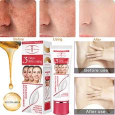 frecklesremoval, blemishremoval, whiteningcream, Skincare