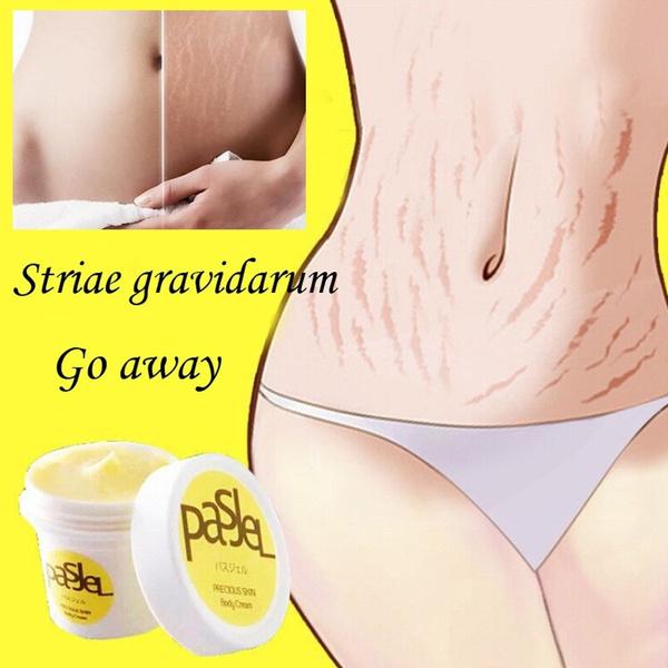 stretch, Acne, removal, Skincare