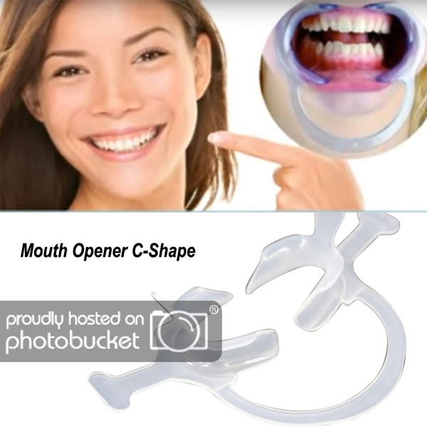 dentist, lip, mouthopener, mouth