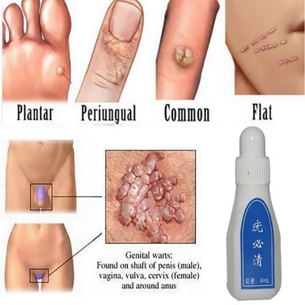 Corn, Foot Care, skintagremover, Skincare