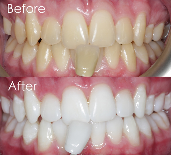 teethwhitenning, teethstainremover, Plants, Whitening