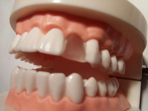 teeth, Kit, tooth, Health & Beauty