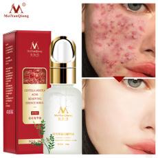 essentialoil, beautyproductsforwomen, Health & Beauty, Acne