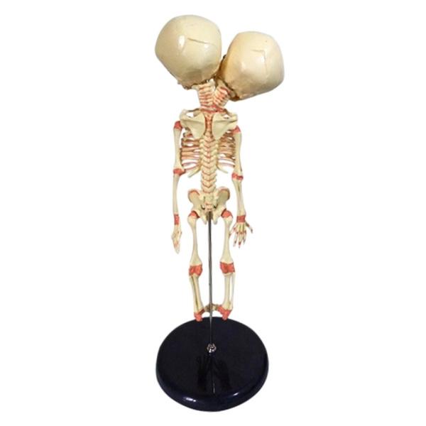Head, Skeleton, skull, Medical
