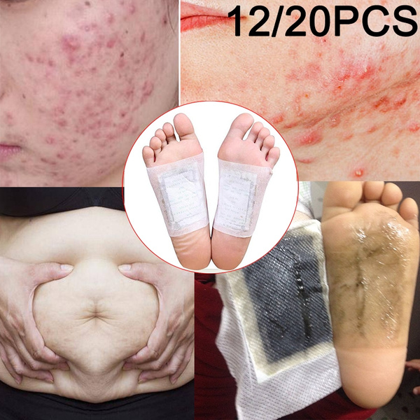 badbreath, removeathletesfoot, Acne, preventbadbreath