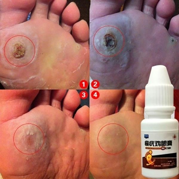 footessentialoil, footcorn, Foot Care, chickeneye