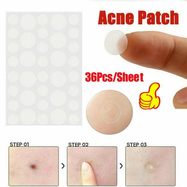 acnecleaner, acneremovertool, acneremover, acneremoval