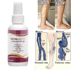 vasculiti, veinstreatment, healthampbeauty, varicosevein