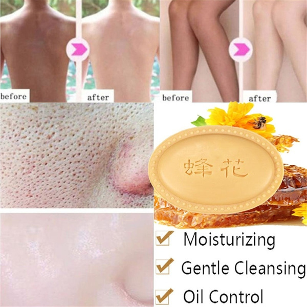 Shower, facialcleaning, eczema, dermatiti