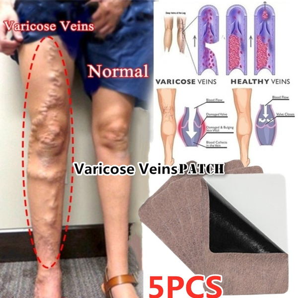 painrelief, vasculiti, Patch, outingequipment
