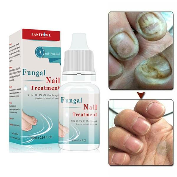 Nails, Beauty, nailtreatment, paronychia