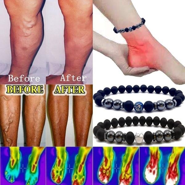vasculitisvein, Jewelry, Healthy, varicosevein