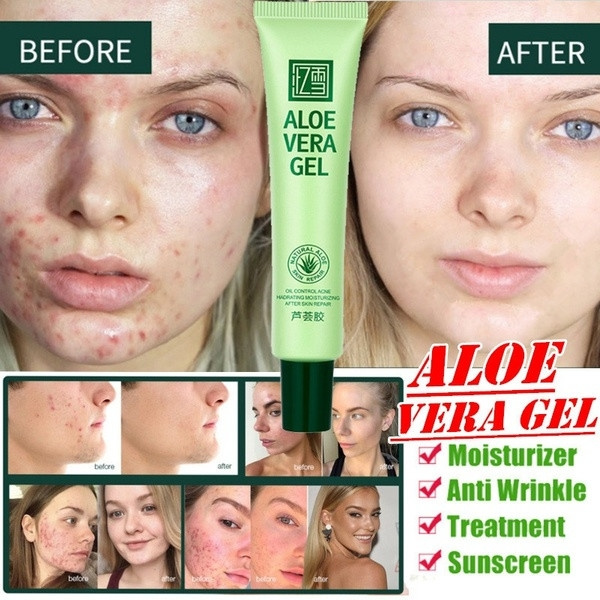 Anti-Aging Products, Plants, acneremover, oilcontrol