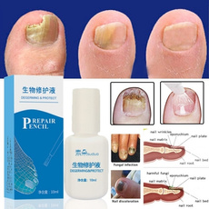 Beauty, Chinese, fungalnail, fungalnailtreatment