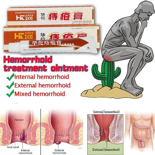 analfissure, hemorrhoidscream, Chinese, internalhemorrhoid
