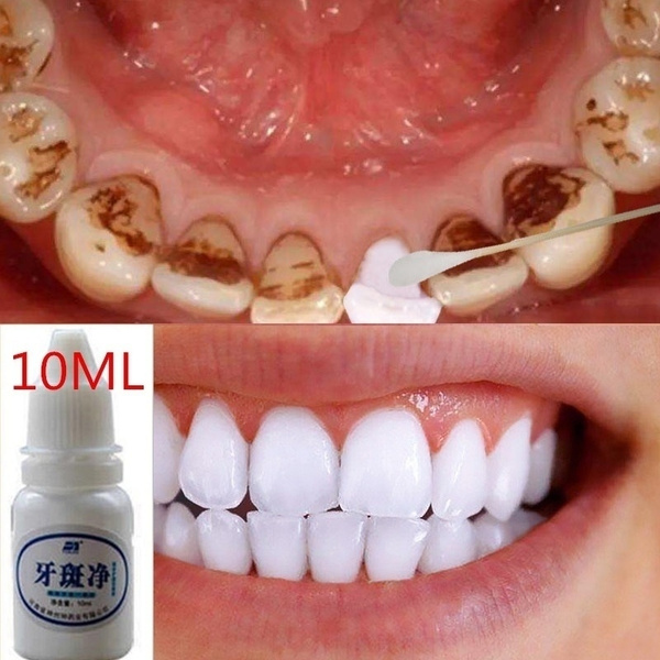 teethwhiteningpowder, Magic, teethwhitening, dentaltoothwhitening