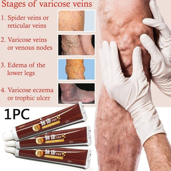 healthcareproduct, preventvaricosevein, Personal Care, varicosevein