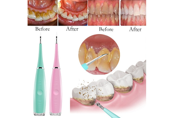 Portable Electric Sonic Dental Scaler Tooth Calculus Remover Tooth Stains Tartar Tool Dentist Whiten Teeth Health Hygiene White Wish