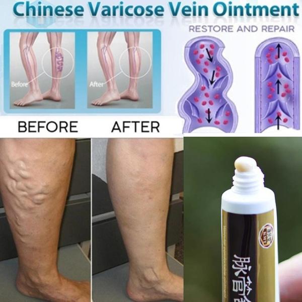vasculitisvein, vasculiti, Healthy, magnetictherapy