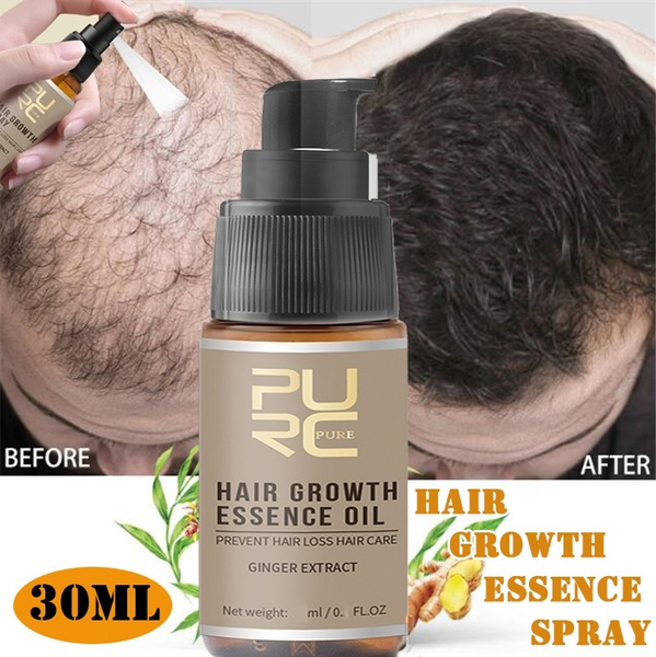 essentialoil, hairlossproduct, haircareampstyling, hair