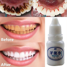teethwhitening, Beauty, Healthy, Tool
