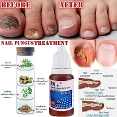 repair, fungal, Beauty, essence
