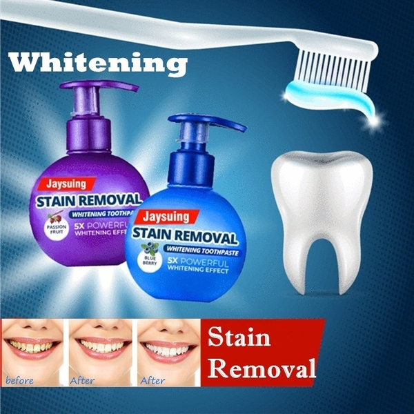 stainremoval, tartarremoval, dentaloralcare, toothstain