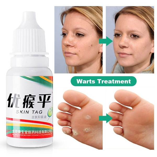 footcorn, wart, Foot Care, removal
