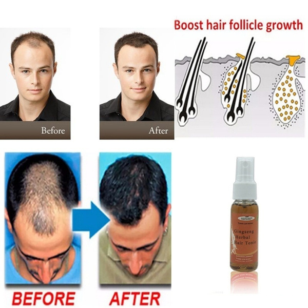 fasthairgrowth, healthampbeauty, hairlossproduct, Men