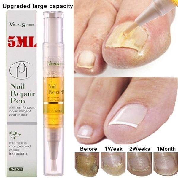 fungusremoval, nailsartamptool, Beauty, Pen