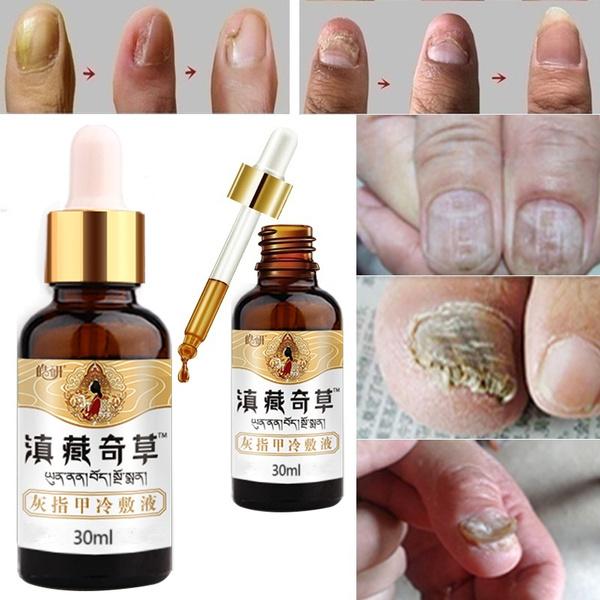 Beauty, Chinese, toenail, tineapedi