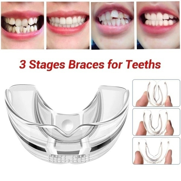 orthodonticbrace, dentaltray, dentalguard, tray