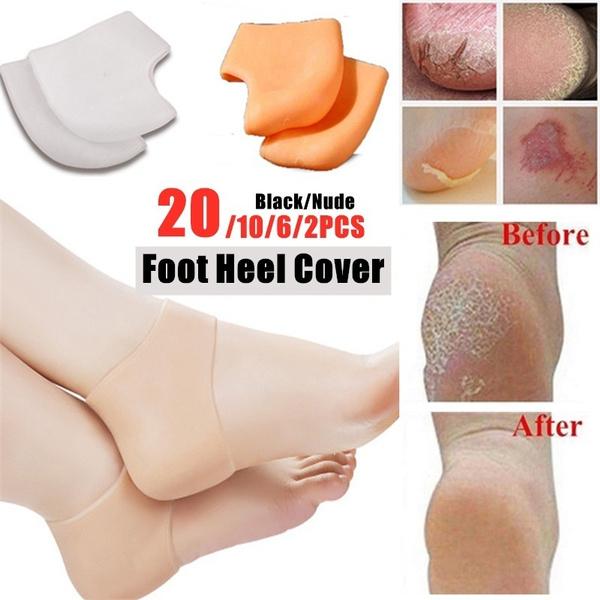hallux, Silicone, footpainrelief, Socks