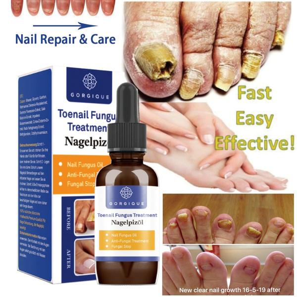 fungusremoval, nailsartamptool, Beauty, healthbeatuty