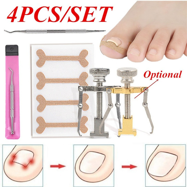protectingrowingtoecare, ingrowntoenailtool, toenailstraightener, nail clippers