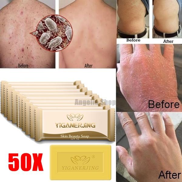 treatmentsoap, psoriasi, funguremovalsoap, eczema
