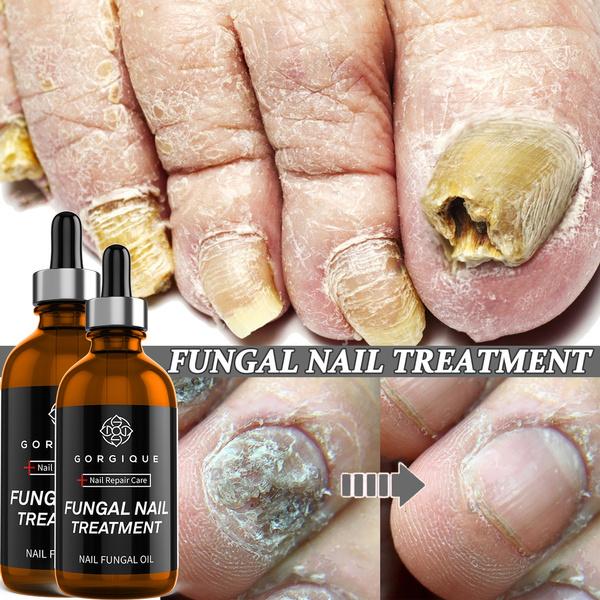 Manicure & Pedicure, toenail, essence, onychomycosi