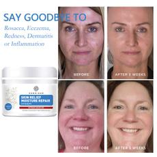 inflammatoryacne, Beauty, Face, Skincare