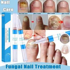 Chinese, Beauty, fungaltreatment, nailfungal