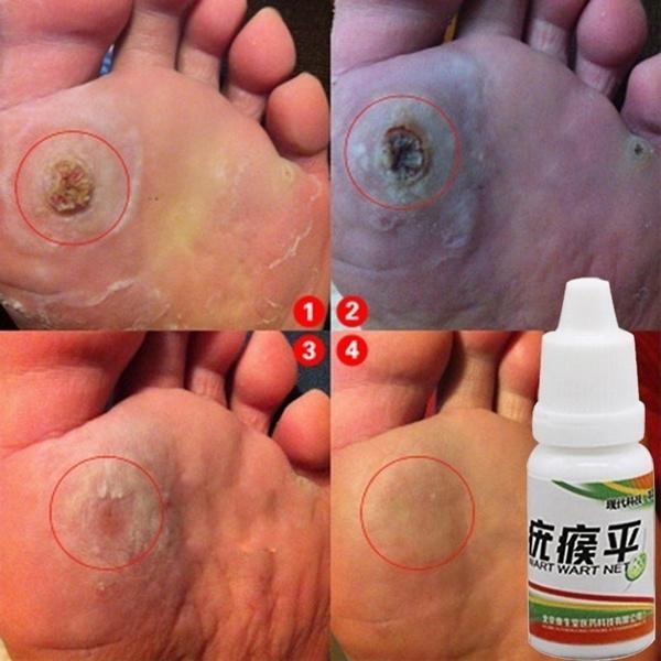 Skincare, footcorn, skintagmoleremover, wart