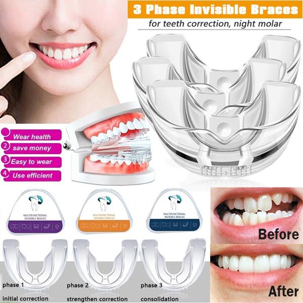 molarstage, invisiblebrace, orthododontic, teethcorrectorbrace