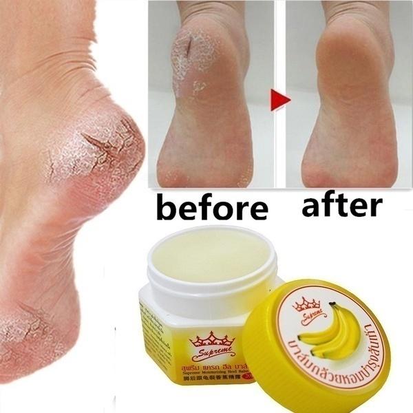 footpeeling, foothealthcare, tineapedi, Foot Care