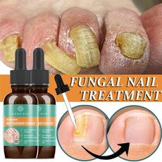 Pedicure, essence, fungalnail, onychomycosi