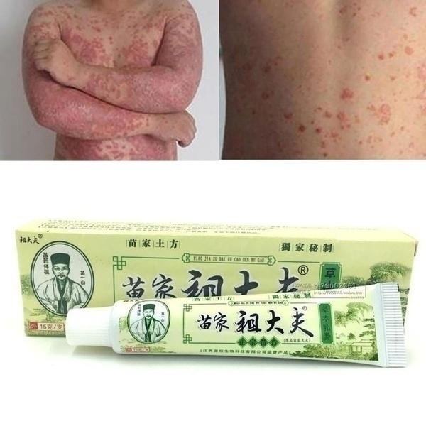 psoriasi, creampsoriasisskin, dermatiti, eczema