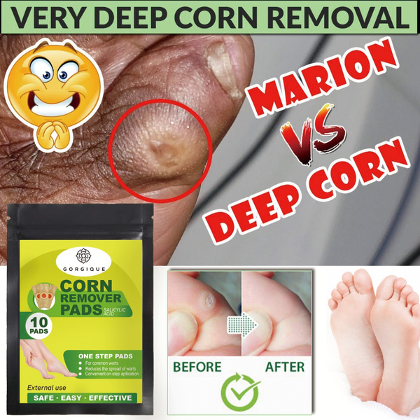 footwart, pain, Corn, callusremoval