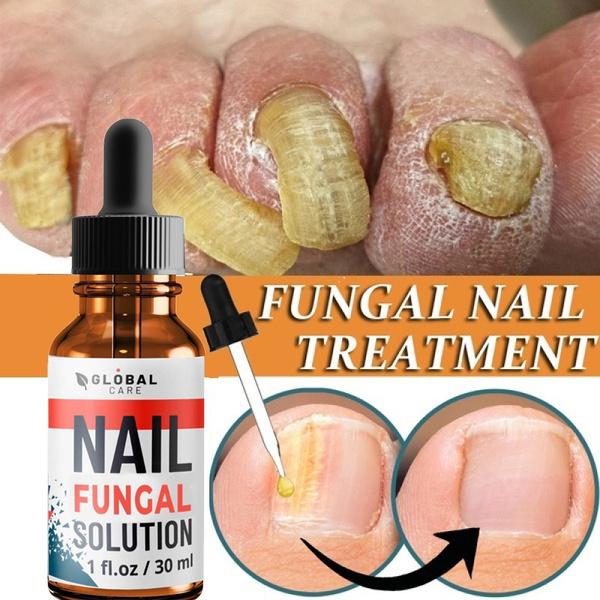 fungustreatment, Beauty, beautypersonalcare, nailtreatment