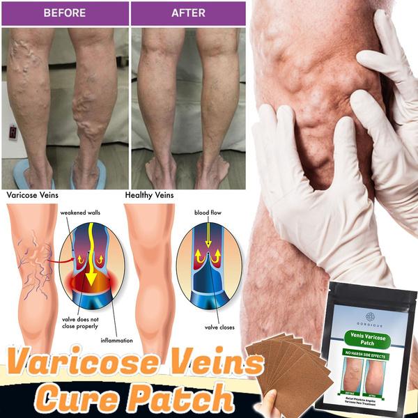 painrelief, legs, Medical, Health Care