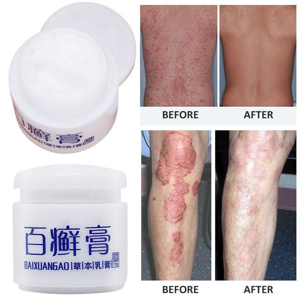 Body, dermatiti, antibacterial, Skincare