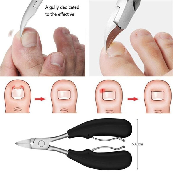 Beauty, toenailcuticle, nipper, deadskinremover